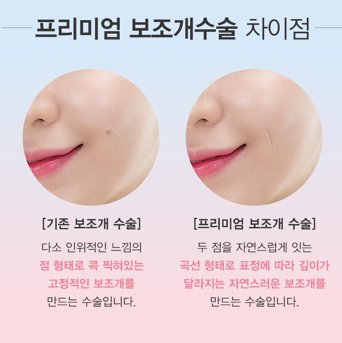 2017_보조개_03.jpg