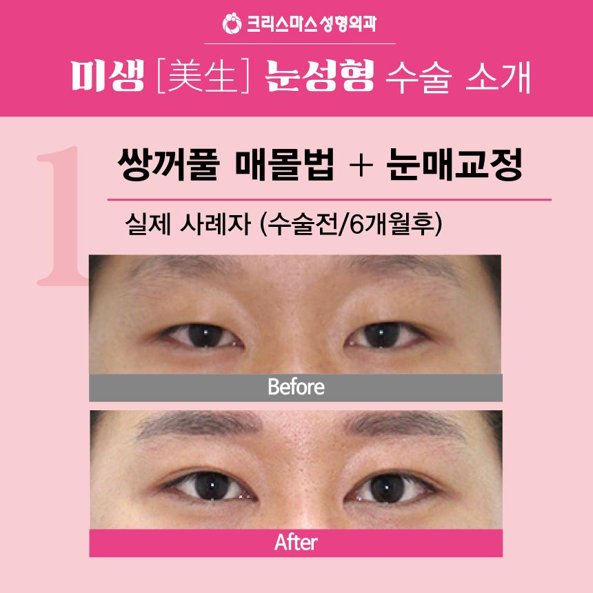 20170915_직장인눈성형특가_모바일용_05.jpg