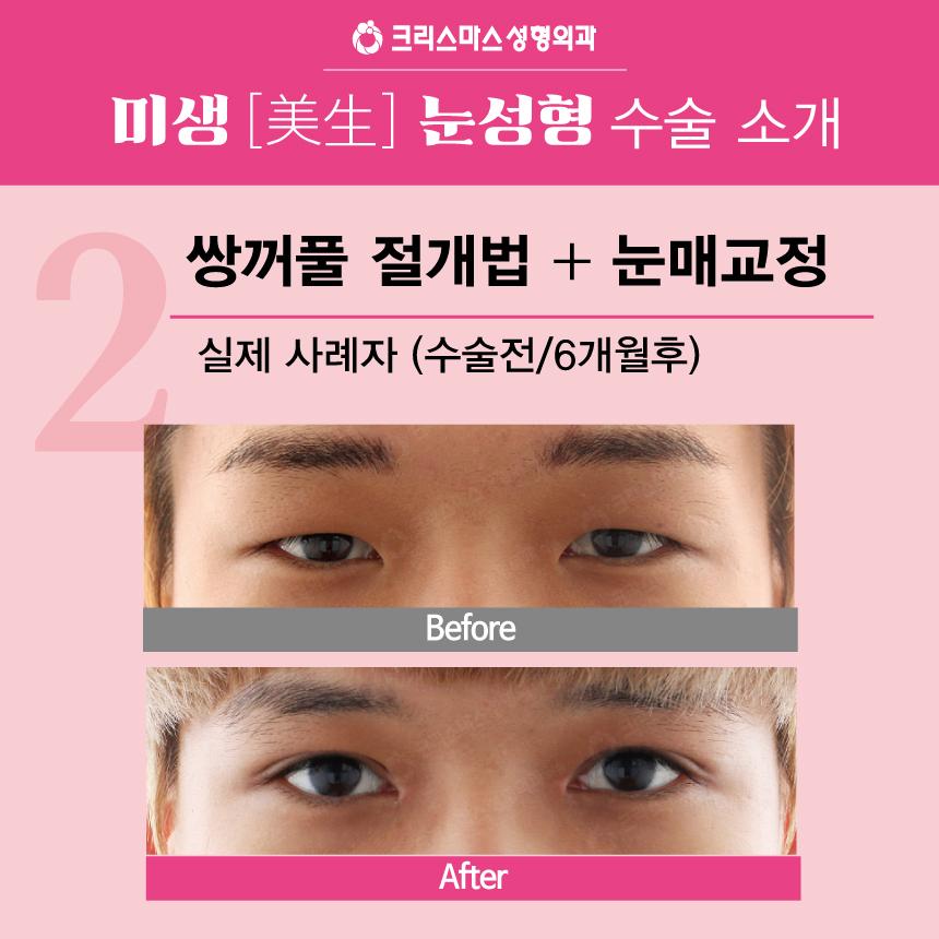 20170915_직장인눈성형특가_모바일용_09.jpg