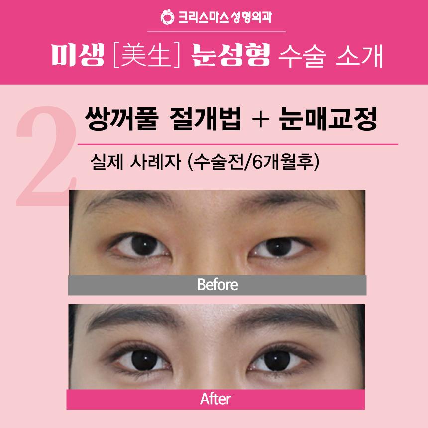 20170915_직장인눈성형특가_모바일용_08.jpg