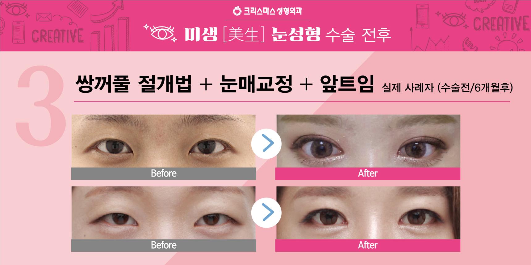 20170915_직장인눈성형특가_블로그용_08.jpg