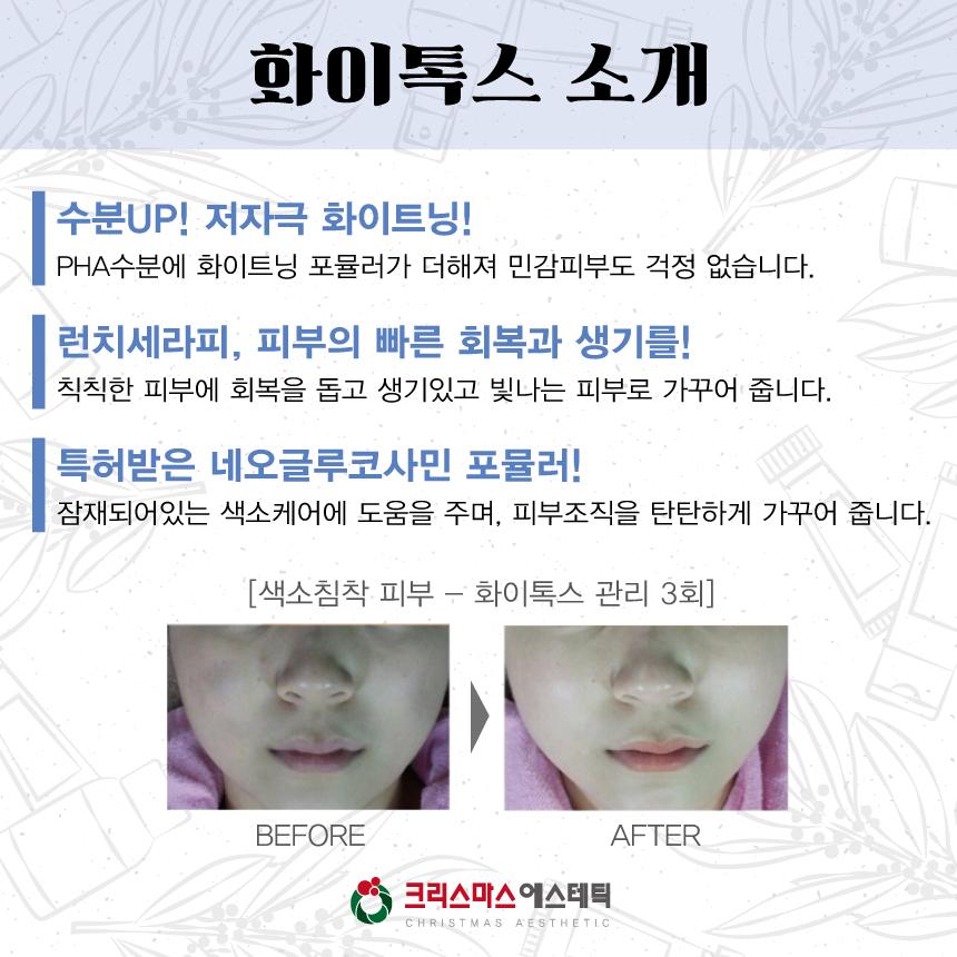 20170919_직장인피부개선이벤트_03.jpg