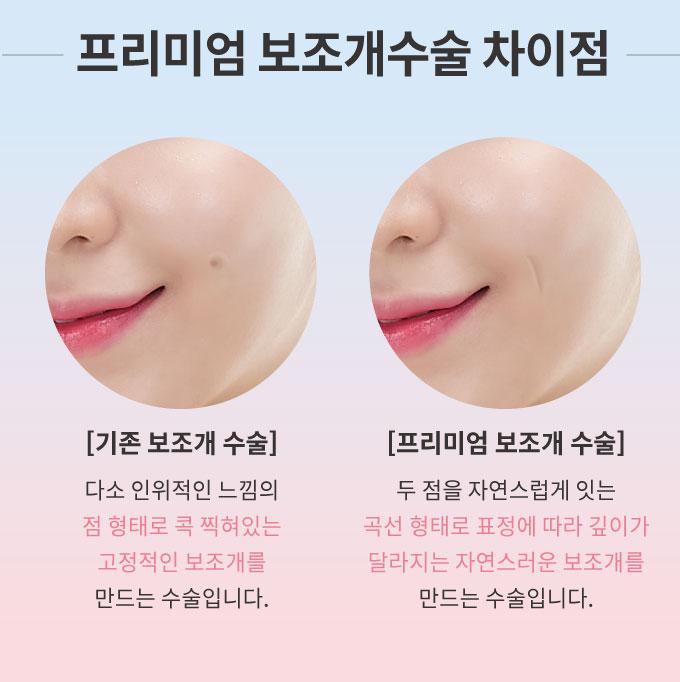 2017_보조개_2020수정3.jpg